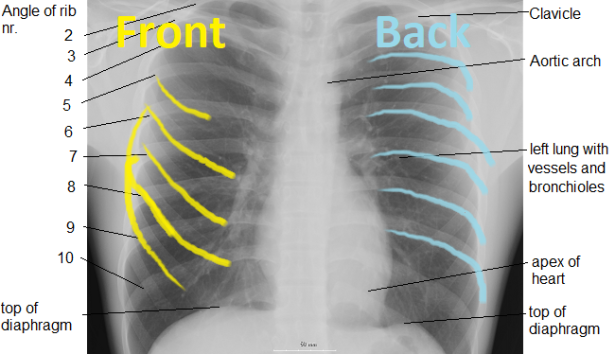 cxr_labeled-ribs.png