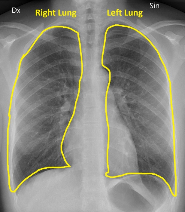 Normal_CXR-lungs