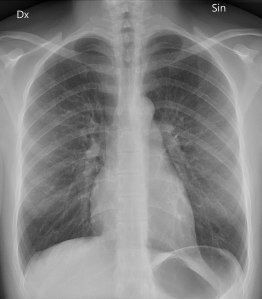 Radiology Normal Chest X Rays Glass Box Medicine