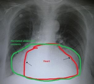 HiatalHernia-labeled