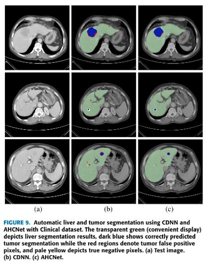 liver-tumor